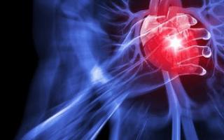 Аневризма сердца после инфаркта миокарда
