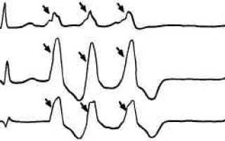 Желудочковая экстрасистолия по типу тригеминии