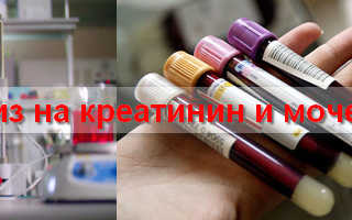 Биохимический анализ крови креатинин и мочевина