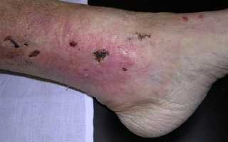 Раны на ногах при сердечной недостаточности лечение