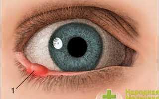 Инфаркт глаза симптомы лечение