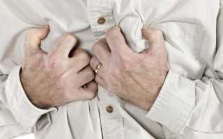 Инфаркт q негативный инфаркт миокарда