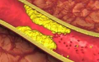 Атеросклеротическое поражение бца что это такое