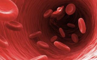 Анемия причины симптомы показатели крови при анемии