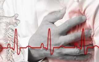 Витамины после инфаркта миокарда