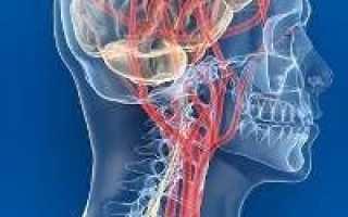 Ангиодистония по гипертоническому типу