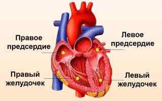 Изменения миокарда левого желудочка распространенные