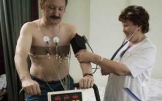 Занятия спортом после инфаркта и стентирования для мужчин