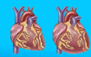 Вторичная кардиомиопатия что это такое
