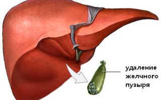 Билиарная гипертензия после холецистэктомии