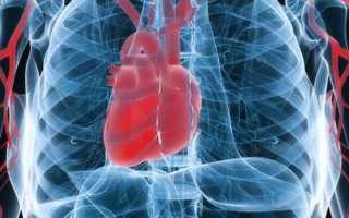 Гомеопатия сердце аритмия