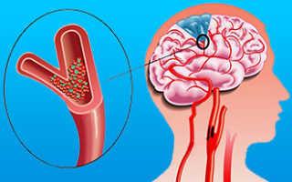 Аритмия после инфаркта миокарда лечение