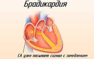 Брадикардия у пожилых людей лечение