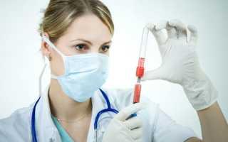 Аутогемотерапия как правильно делать