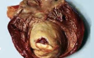 Аневризма митрального клапана