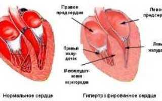 Заболевание левого желудочка сердца лечение