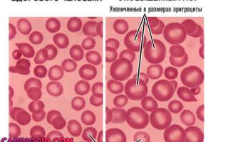 Анализ крови расшифровка mcv у детей