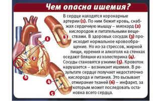 Безболевая ишемия миокарда мкб 10