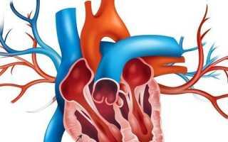 Гипертония правого желудочка сердца у ребенка