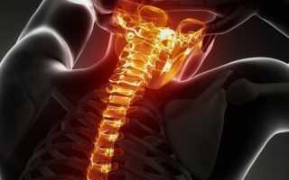 Внутричерепное давление при шейном остеохондрозе