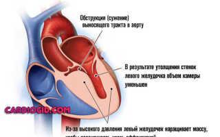 Диффузные неспецифические изменения миокарда