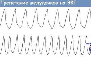 Фибрилляции желудочков экг признаки