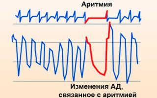 Что надо принимать при аритмии сердца