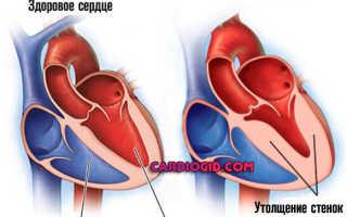 Гипертрофия левого желудочка у ребенка