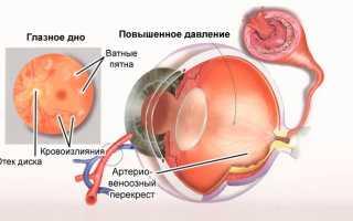 Глазное давление в норме сколько должно быть