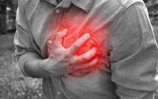 Болит сердце при ходьбе