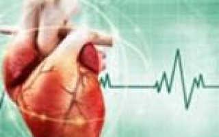 Аритмия сердца симптомы википедия
