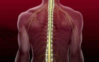 Ишемия спинного мозга
