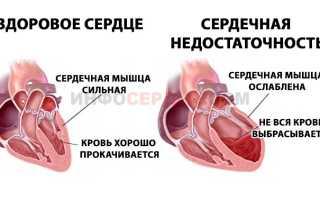 Реанимационные мероприятия при острой сердечной недостаточности