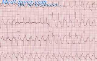 Заднебазальный инфаркт миокарда на экг