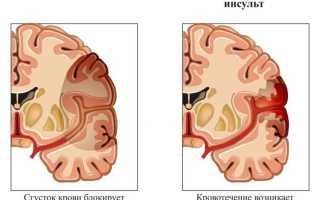Инсульт средней тяжести восстановление