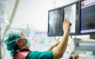Дифференциальная диагностика стабильной стенокардии и инфаркта миокарда