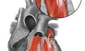 Марс диагноз заболевания сердца