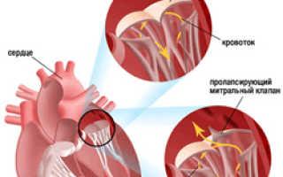 Пролапс аортального клапана