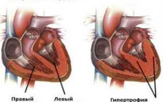 Гипертрофии признаки на экг