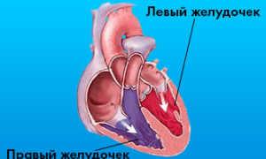 Инфаркт миокарда правого желудочка экг