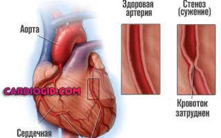Тахикардия при нормальном пульсе