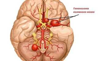 Гемангиома головного мозга у взрослых