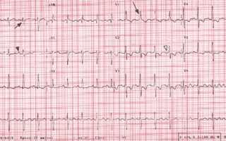 Давление в легочной артерии норма на эхокг