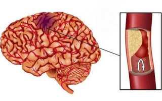 Геморрагический инфаркт головного мозга это