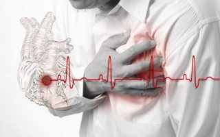 Давление при инфаркте миокарда у мужчин