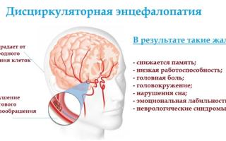 Дисциркуляторная энцефалопатия 2 степени история болезни