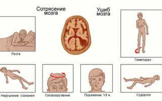 Показывает ли рентген сотрясение мозга