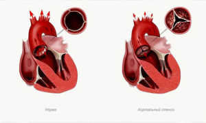 Заболевания сердца у подростков