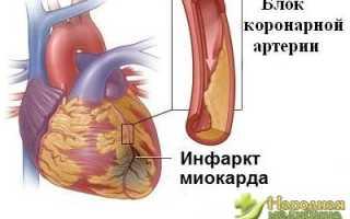 Анамнез при инфаркте миокарда