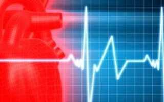 Противопоказания при стенокардии